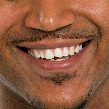 man's chipped front tooth