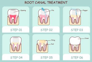 Root canal therapy from dentist in Buffalo Grove, Dr. Natalya Nagornaya, heals failing teeth. Read the backstory of this tried and true restoration.