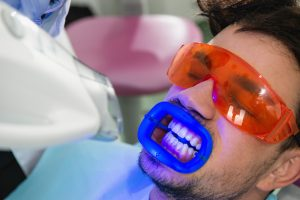 Man receiving professional teeth whitening